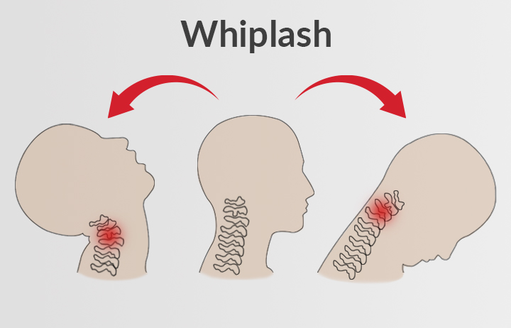 Whiplash treatment Carindale